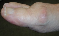 arthritis hallux side view (250x154)